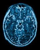 Imagen de resonancia magnética principal de Mri imagenes de archivo