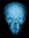 Imagen del cráneo, opinión de la radiografía del AP Imagenes de archivo