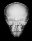 Imagen del cráneo, opinión de la radiografía del PA Imagen de archivo libre de regalías