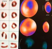 Imagen del miocardio moderada de la isquemia Imágenes de archivo libres de regalías