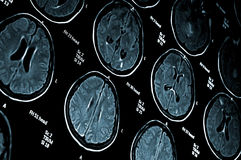 Imagen del mri del cerebro Fotos de archivo libres de regalías