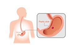 Imagen del primer de la úlcera péptica ilustración del vector