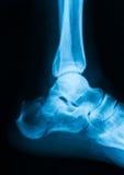 Imagen del tobillo, visión lateral de la radiografía Fotos de archivo