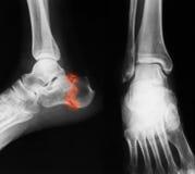 Imagen del tobillo, visión lateral de la radiografía Fotografía de archivo libre de regalías