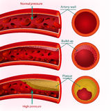 Imagen del vector de la sangre Imagenes de archivo