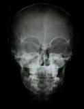 Imagen delantera de la radiografía del cráneo de la cara Fotos de archivo