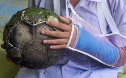 Imagen herida del brazo Imagen de archivo