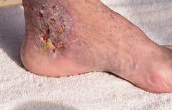 Imagen médica: Celulitis de la infección imágenes de archivo libres de regalías