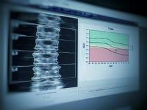 Imagen suave y borrosa: densidad lumbar del hueso de la imagen médica especial del examen en el fondo blanco - imagen de archivo