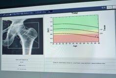 Imagen suave y borrosa: densidad médica del hueso de la cadera de la imagen del examen especial en el fondo blanco - fotografía de archivo