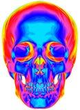 Imagen termal del cráneo humano Foto de archivo libre de regalías