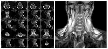 Imaging a risonanza magnetica della spina dorsale cervicale Immagine Stock