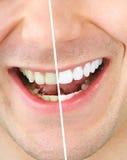 Imbiancatura del dente Fotografia Stock