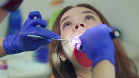 Imbiancatura del materiale di riempimento del dente Fine sul dentista che fa procedura stock footage