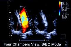 Immagine Colourful del monitor di ultrasuono del cuore di homan immagini stock