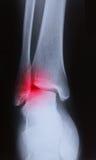 Immagine dei raggi x del giunto del piede umano Immagine Stock