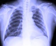 Immagine dei raggi x del petto umano maschio immagini stock libere da diritti