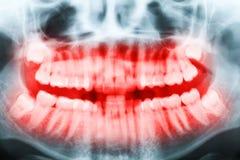Immagine dei raggi x del primo piano dei denti e della bocca Fotografia Stock Libera da Diritti