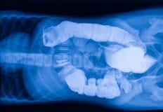 Immagine dei raggi x dell'intestino con i corpi estranei Immagine Stock
