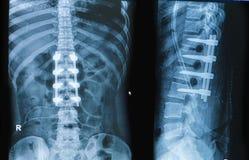 Immagine dei raggi x della colonna vertebrale di manifestazione di dolore alla schiena con fusione dell'impianto fotografia stock libera da diritti