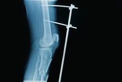 Immagine dei raggi x della gamba di frattura (tibia) Fotografia Stock Libera da Diritti