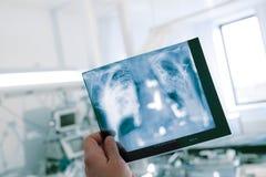 Immagine dei raggi x della tenuta del lavoratore medico del torace paziente sulle sedere fotografia stock