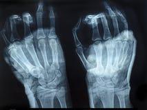 Immagine dei raggi x delle mani umane Immagine Stock Libera da Diritti