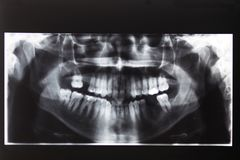 immagine dei raggi x dei denti e della bocca Fotografia Stock