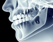 Immagine dei raggi x di una mandibola con i denti Fotografia Stock