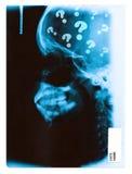 Immagine dei raggi X Fotografia Stock Libera da Diritti