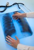 Immagine dei raggi X dei polmoni Fotografia Stock Libera da Diritti