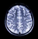 Immagine dei raggi X del cervello Immagine Stock Libera da Diritti