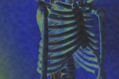 Immagine dei raggi x della costola dell'uomo Immagini Stock Libere da Diritti