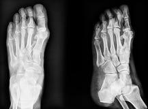 Immagine del primo piano dell'immagine classica dei raggi x dei piedi Rebecca 36 Immagine Stock Libera da Diritti