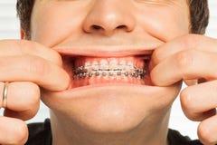 Immagine del primo piano dell'uomo che mostra i ganci dentari Fotografia Stock Libera da Diritti