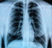 Immagine dell'esame radiografico del torace Fotografie Stock Libere da Diritti