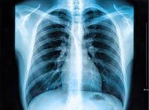 Immagine dell'esame radiografico del torace Fotografia Stock