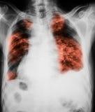Immagine dell'esame radiografico del torace che mostra infezione dei polmoni Fotografie Stock Libere da Diritti