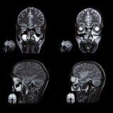 immagine della tomografia computerizzata del cervello Immagini Stock