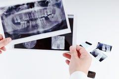 Immagine dentaria panoramica dei raggi x dei denti Immagine Stock