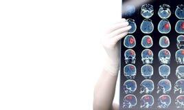 Immagine di CT in mani di medico isolate su fondo bianco fotografia stock libera da diritti