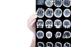 Immagine di CT in mani di medico su bianco immagine stock libera da diritti