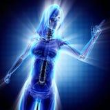 Immagine di ricerca della radiografia delle ossa della donna Immagini Stock
