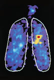 Immagine grafica che mostra malattia in polmone umano Fotografie Stock