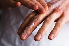Immagine potata di un giovane che mette idratante sulla sua mano con pelle molto asciutta e sulle crepe profonde con emmolient cr Fotografie Stock