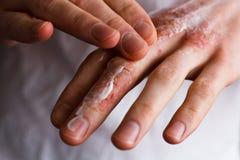Immagine potata di un giovane che mette idratante sulla sua mano con pelle molto asciutta e sulle crepe profonde con emmolient cr Fotografia Stock