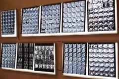 Immagini dei raggi x delle parti del corpo Fotografia Stock Libera da Diritti