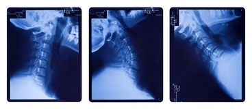 Immagini dei raggi x della spina dorsale del collo Fotografia Stock