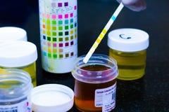 Immerga il bastone che mostra l'esame delle urine per il diabete della proteina e del glucosio immagine stock libera da diritti