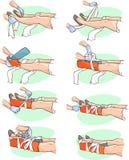 Immobilizzazione una gamba rotta Immagini Stock
